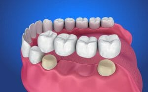 Drawing of dental bridge