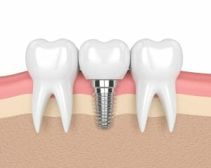 cross section of dental implant