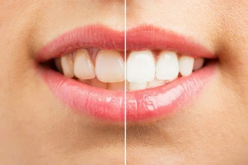 side by side of before and after whitening